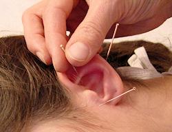 wie lange wirkt akupunktur